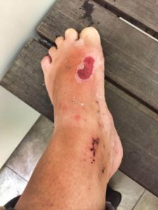 wounds-from-sandflies-new-zealand-sandy